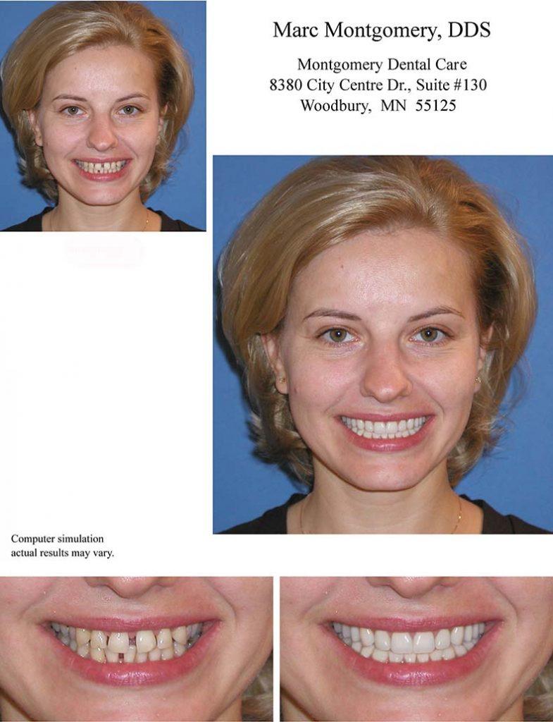 Conservative esthetic dental treatment plan