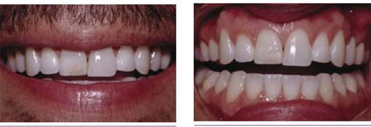 diagnoses were a defective restoration on tooth #8 and nocturnal bruxism