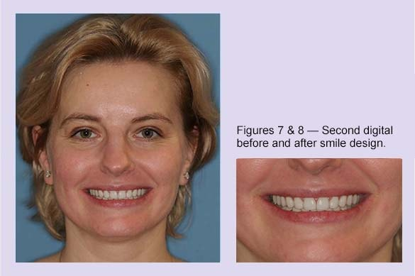 Esthetic dental care- or beautiful teeth