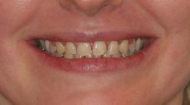 Esthetic treatment plan by Montgomery Dental Care in Woodbury MN