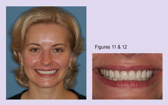 Final results including preparation and provisionals during esthetic dental repair