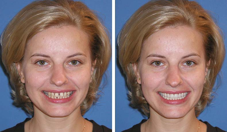 Predictably Meeting Patient's Expectations in Esthetic Dentistry