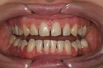 Figure 19—Pre-op photos after orthodontics.