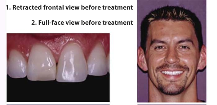Woodbury MN dental clinic offers services for replacing an old composite (plastic) restoration