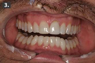 pre-operative-view-of-full-mouth-rehabilitation-N