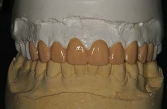 Diagnostic wax-up of the upper dental restorations