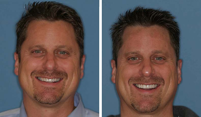 Full Mouth Rehabilitation Made Simple and Affordable