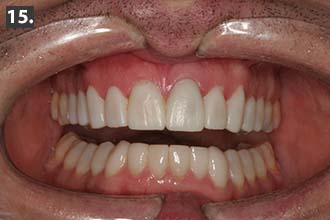 Retracted and smile view of the provisionals two weeks post-op