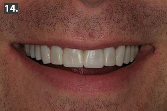 Woodbury MN full-mouth restoration produces stunning smile