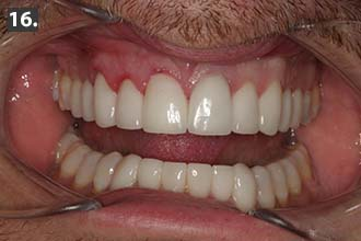 final smile design with full-mouth rehabilitation dental patient