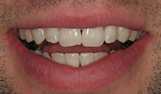 Before smile image for composite bonding on the front 4 teeth