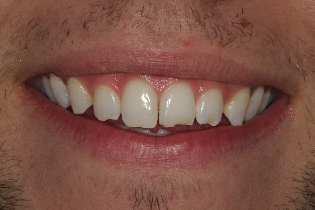 How Michael's teeth looked before he gained new dental results