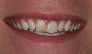 Sam's mouth before dental work at Montgomery Dental Care