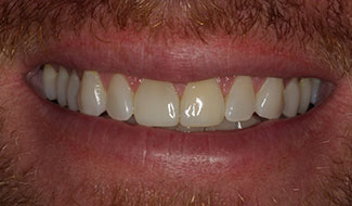 Pat's mouth after repairing chipped front tooth