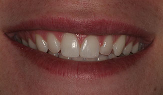 Sam's teeth after dental work at Montgomery Dental Care