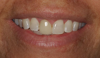 Traci's mouth before fixing a darkened tooth