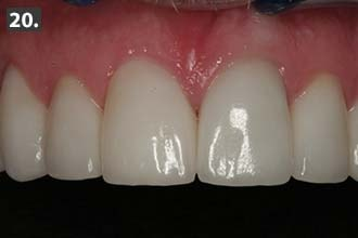 Woodbury MN pre-operative full face view showing the flat smile line.