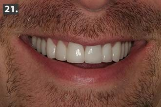 Woodbury MN full-mouth restoration dental case