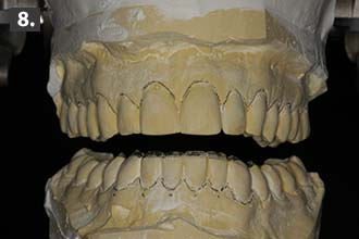 Pre-operative models for full-mouth rehabilitation dental patient