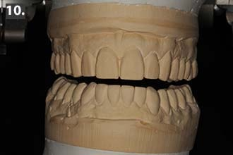 Duplicate model of upper wax-up, lower anterior recontoured crowns and lower posterior wax-up.