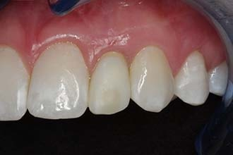 Anterior implant restorations papilla development