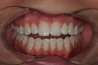 Post-op views Woodbury-MN single tooth implant