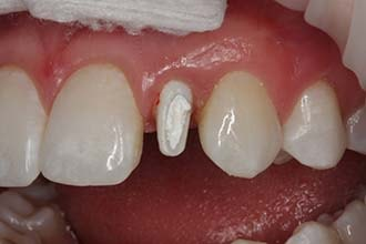 Space occupied by provisional during dental implant