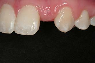 challenge to re-create a natural smile for Dr. Marc Montgomery, Woodbury MN oral surgeon