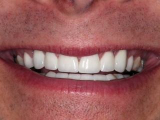 Greg's teeth after his dental implants at Montgomery Dental Care