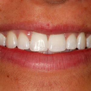 Alexa Close-Up After Orthodontics with Dr. Marc Montgomery