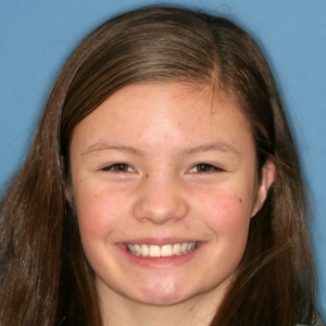 Mickayla After Orthodontics at Montgomery Dental Care