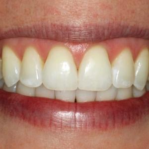 Aimee's dental treatment removed gaps between teeth