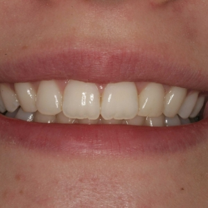 Mickayla's Close-up Smile After Orthodontics