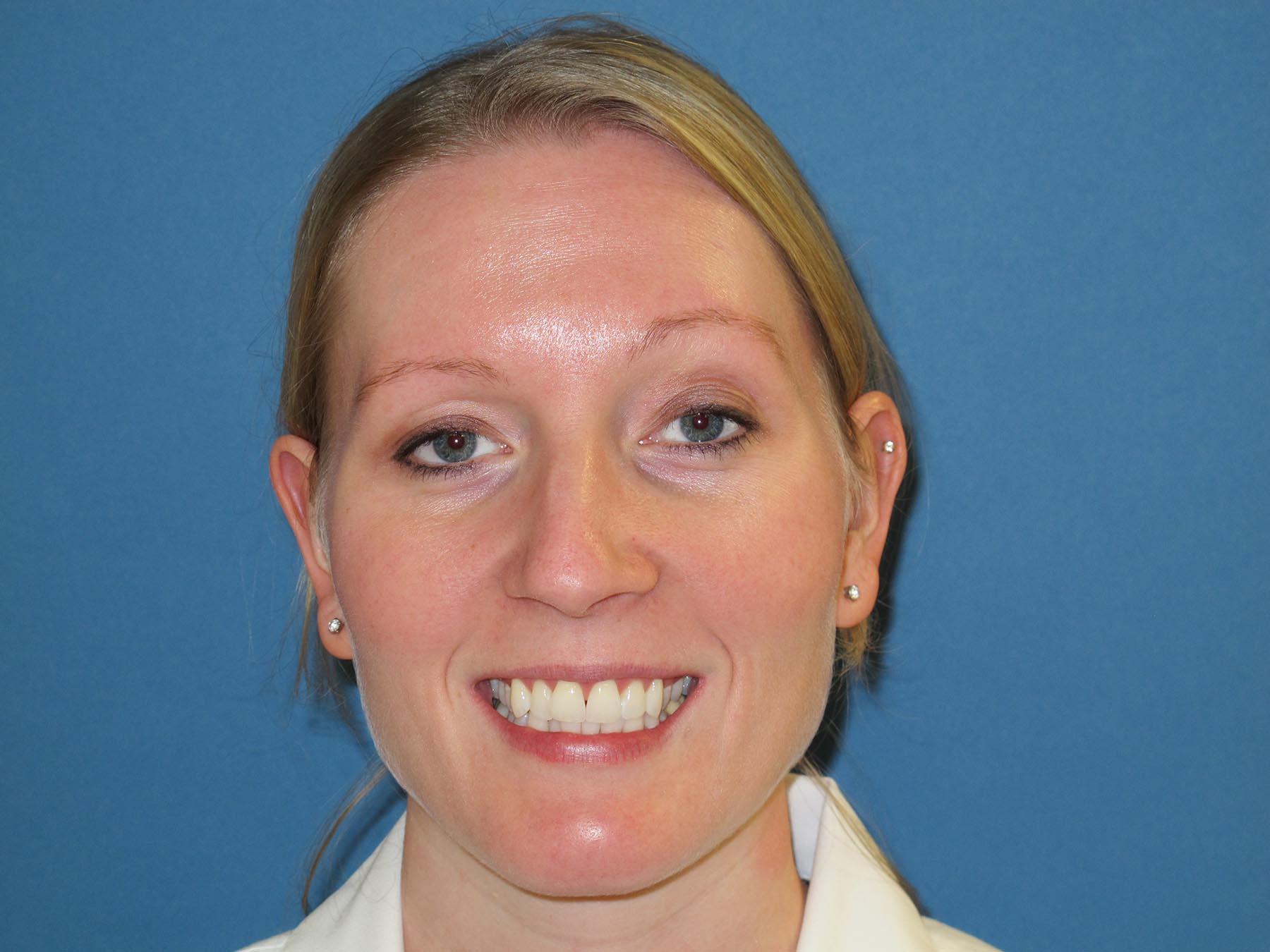Before Aimee's Orthodontic Dental Work at Montgomery Dental Care in Woodbury, MN