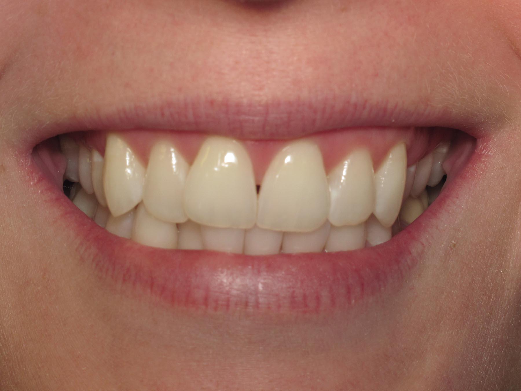 Gaps in Aimee's teeth that we will fix