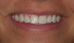 Alexa after orthodontics with Dr. Marc Montgomery