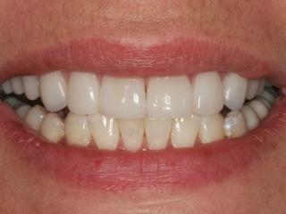 Amanda's Smile After Teeth Whitening and Veneers