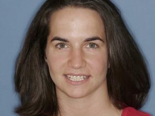 Amanda Before Teeth Whitening and Veneers