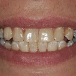 Amanda's Smile Before Teeth Whitening and Veneers