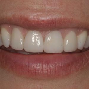 Close-up Smile After Veneers