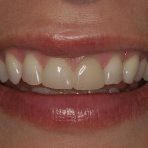 Close-up Smile Before Veneers