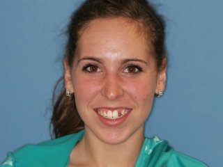 Diagnostics and a clear dental plan were established before her single-tooth implant