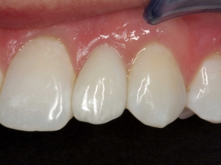 Bailey's Close-Up Smile After Dental Implants