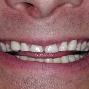 Greg's close-up smile before his dental implants
