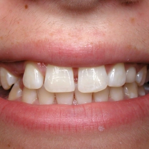 Alexa Close-Up Before Orthodontics with Dr. Marc Montgomery