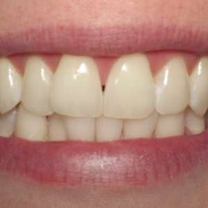 Gaps in Aimee's teeth that Dr. Montgomery Will Fix