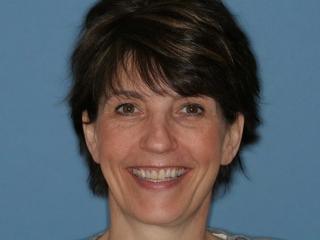 Betsy Before Dental Implants