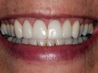 Betsy's Smile After Dental Implants