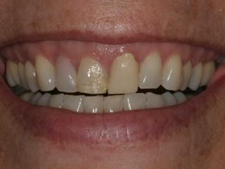 Betsy's Smile Before Dental Implants