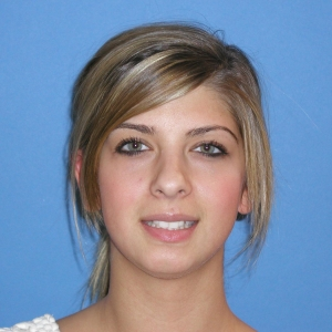 Caitlin before orthodontic treatment at Montgomery Dental Care